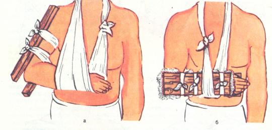 При переломе плечевой кости накладывается