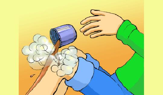 Обжог от кипятка в домашних условиях