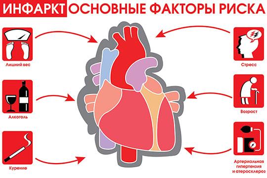 Инфаркт миокарда  Первая доврачебная помощь