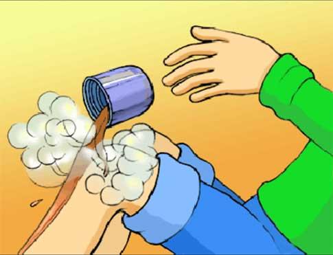 Как снять жар при ожоге в домашних условиях