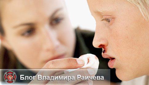Первая помощь при носовом кровотечении в домашних условиях и когда нужно вызывать скорую